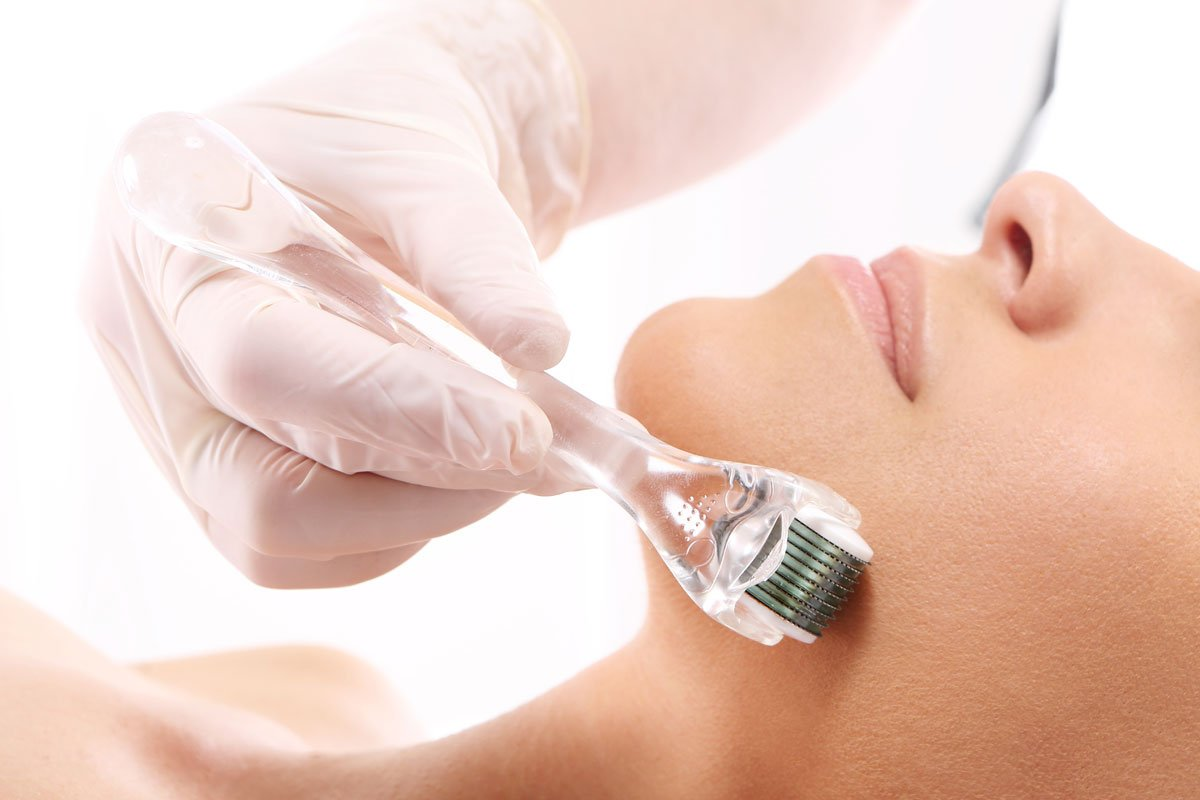 Collagen Infusion (Skin Needling)